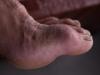 My swollen fractured toe after the Manimahesh Trek